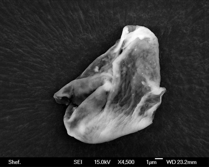 Scansione al microscopio elettronico di una presunta diatomea di origine aliena (Epa)